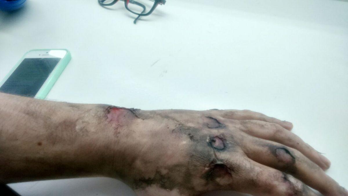 Caracterización – Quemadura herida